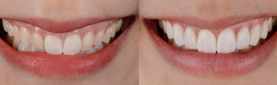 gülüş bozukluklarında toksin uygulamaları gummy smile