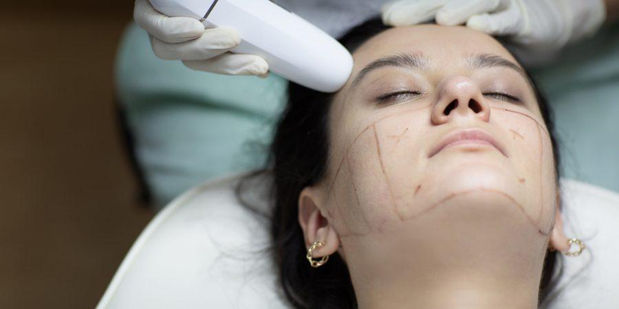 odaklı ultrason ameliyatsız yüz germe