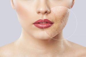 sivilce izi akne skarı tedavisi