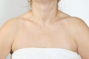 yüz boyun dekolte mezoterapisi